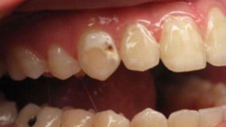 दाँतमा किरा लागेको छ ? दुखाई कम गर्न अपनाउनुहोस् यस्ता घरेलु उपायहरु